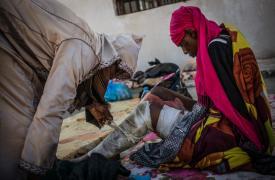 Una mujer con quemaduras, en el centro de detención de mujeres de Sorman, a 60km de Trípoli, Libia.