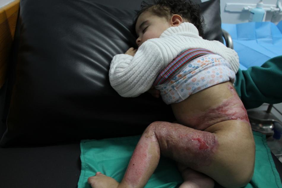 Shahed Abdel Rahman tiene 15 meses. Su familia estaba preparando un té con un fuego improvisado en el suelo cuando se quemó el codo y las piernas. Recibe tratamiento en la clínica de Beith Labia.