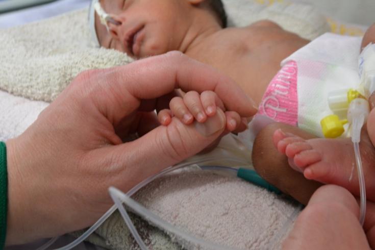 Atendemos a un bebé que nació prematuramente, a mediados del mes siete y pesando solo 1,2 kilogramos, en el Hospital Al-Salam en Khamer, Yemen. Febrero de 2020