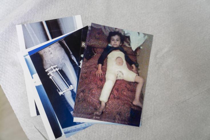 Fátima tiene 9 años y fue víctima de una explosión que la arrojó por el aire y lesionó gravemente su pierna. Se ha sometido a tres intervenciones quirúrgicas en Afganistán y aún depende de su padre para moverse.
