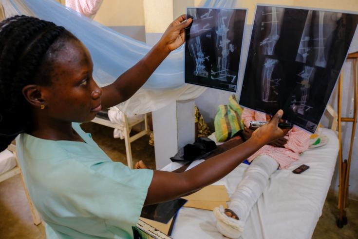 La fisioterapeuta Moulou Talba, del Ministerio de Salud, examina las imágenes de rayos X de un paciente que sufrió fracturas en una pierna después de un accidente de tráfico.