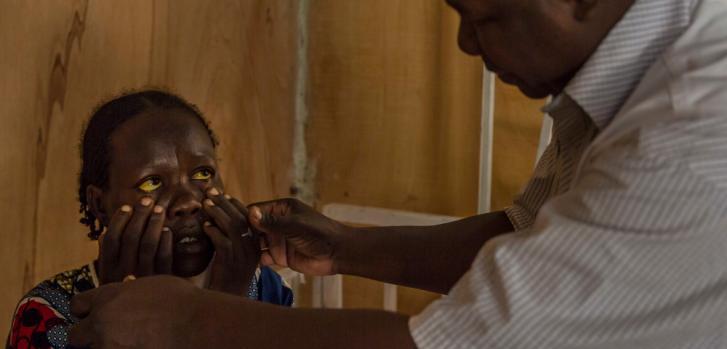 El Dr. Roamba hace sus rondas de chequeo en el Centro de Salud de Madres y Niños (CSME) en Diffa, Níger, con pacientes que sufren de hepatitis E. ©Guillem Valle/MSF