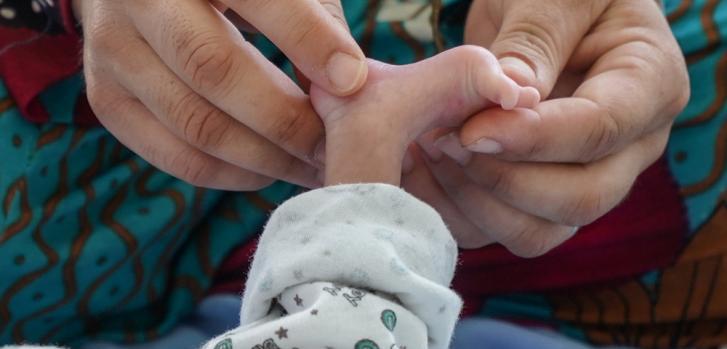 Pequeño pie de un bebé recién nacido en Mosul, Irak.