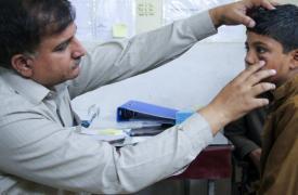 Un paciente siendo atendido en el centro especializado en el tratamiento de la leishmaniasis cutánea en Peshawar, Pakistán. El paciente es Mohammad Asif, de 11 años, quien tiene una lesión en uno de sus ojos.