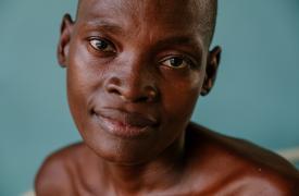 Grace, una paciente con VIH avanzado, en una sala del Hospital del Distrito de Nsanje. Además de estar en tratamiento antirretroviral, Grace ha estado en tratamiento contra la tuberculosis.